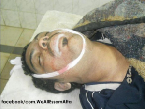 "The body of Essam Atta, posted on a Facebook paged titled ""We are all Essam Atta."""