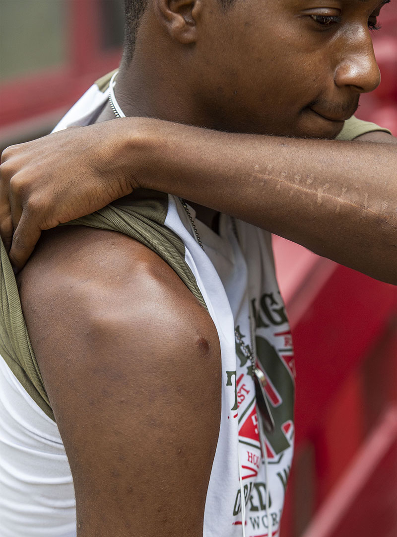Lee Eric Evans shows his gunshot wounds after explaining the several occurrences of gun battles that he was involved in while living in Jackson, Miss. July 3, 2018. (Photo by Eric J. Shelton/GroundTruth)